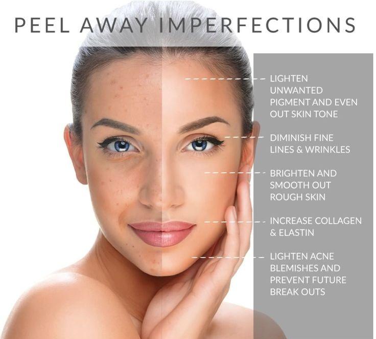 Chemical facial peal